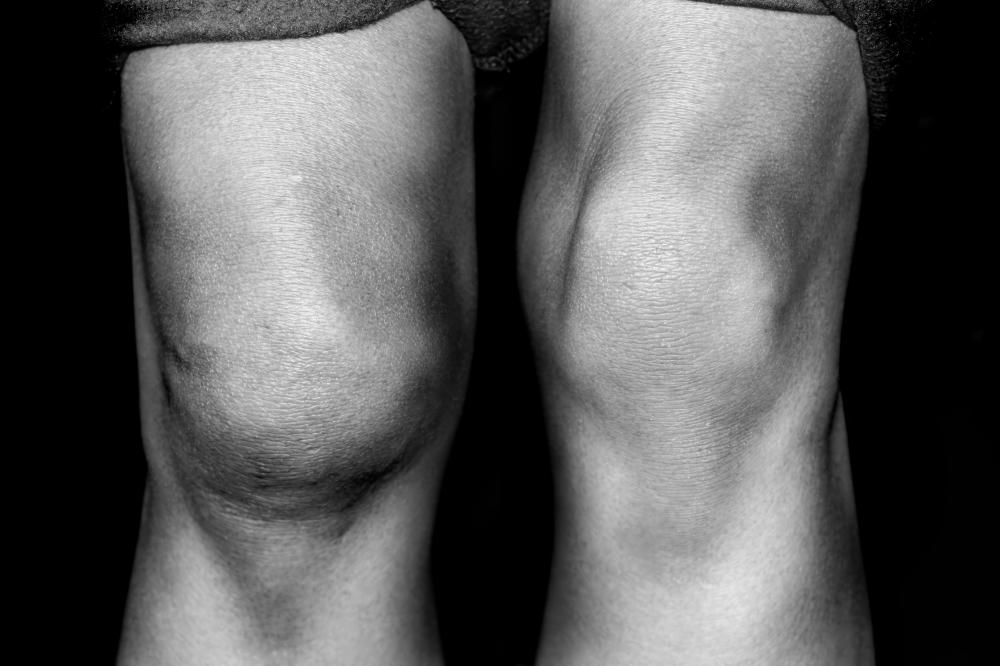A person with a swollen knee.