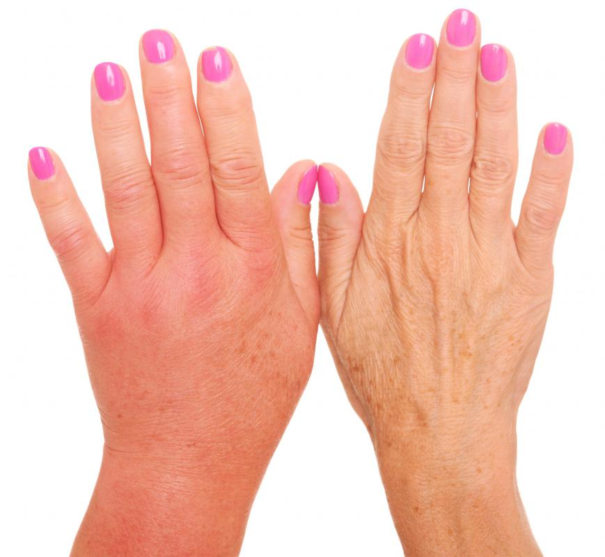 An infection may cause red fingers and swollen hands.