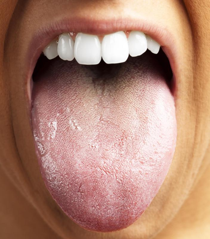 Tongue brushing is important for good oral health.