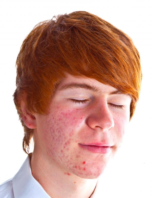 A boy with acne.