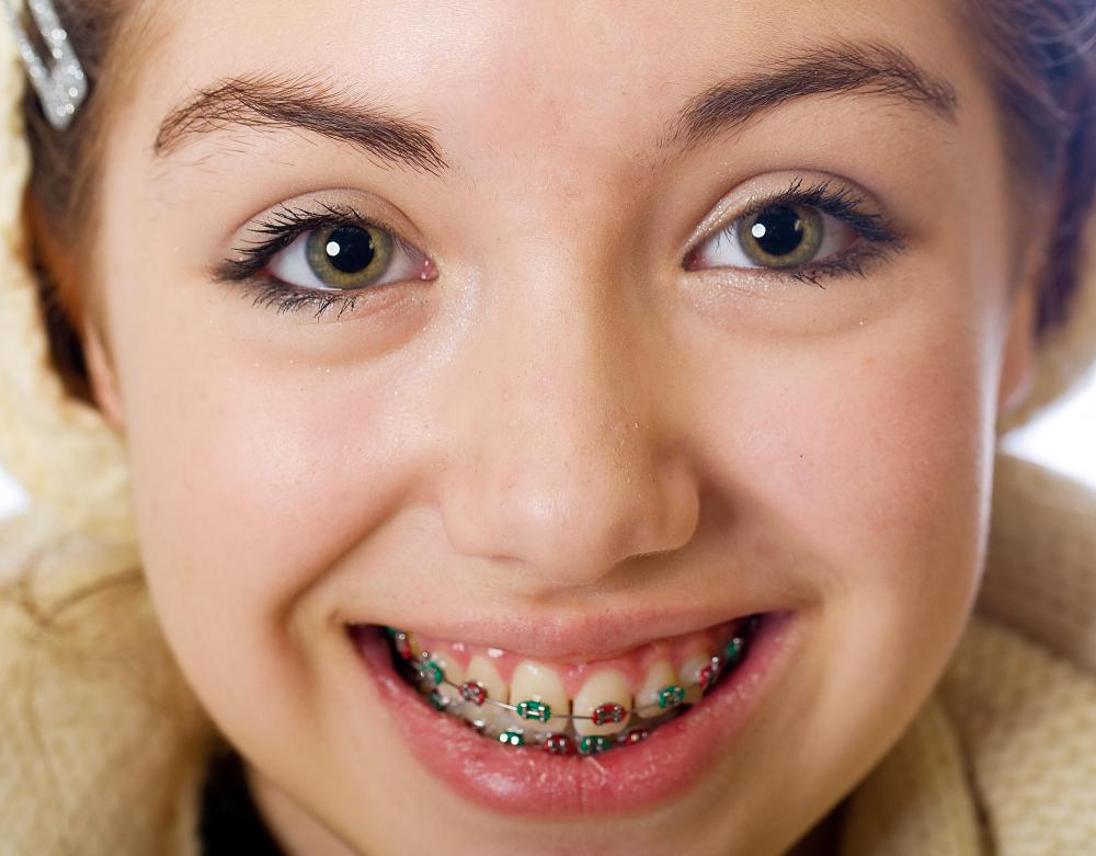 A teenager may use a lip bumper prior to getting braces.