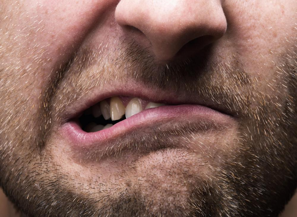 what is cracked tooth syndrome   with pictures