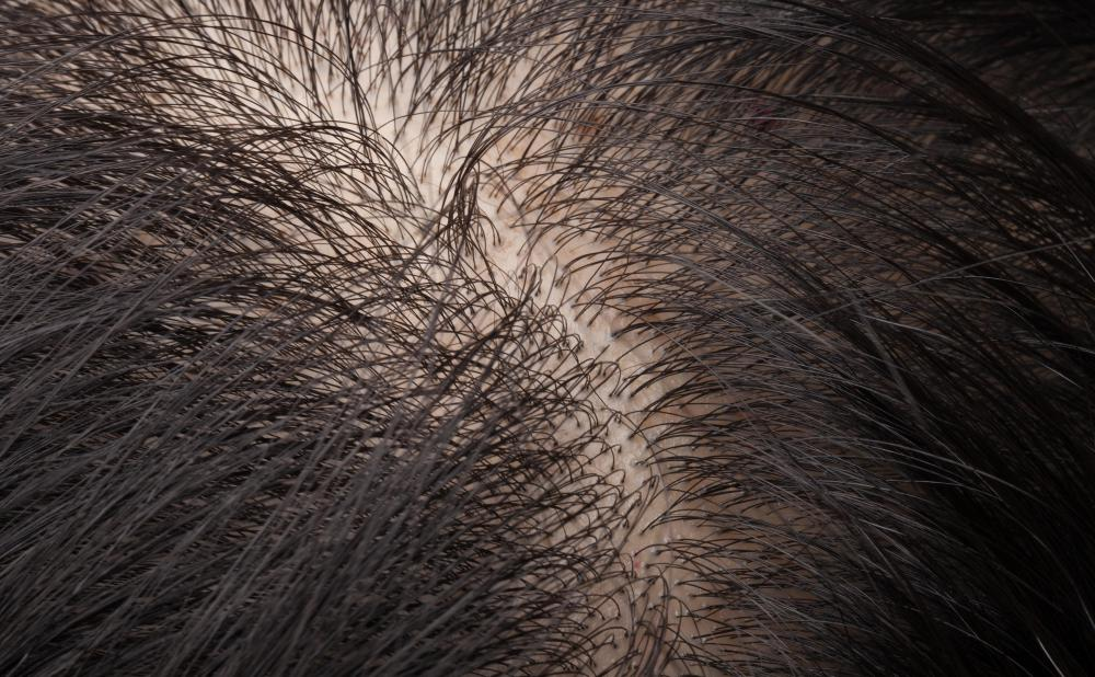 Dandruff, ringworm and lice can cause an itchy scalp.