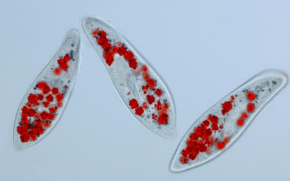 Three paramecia, which are around 200 to 300 micrometers long.