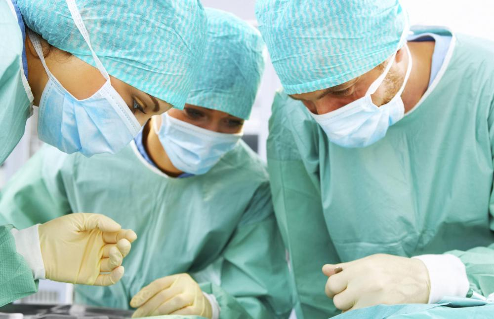 Treatment for a colon stricture may include surgery.