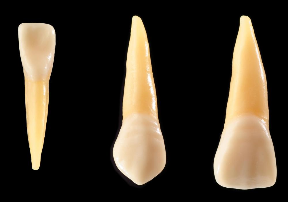 Composite can be used to repair a tooth with a minor chip.