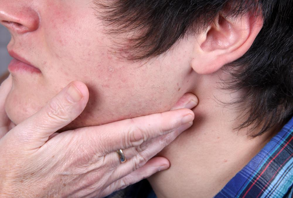 Right under the jaw line is one place that can be checked for swollen lymph nodes.