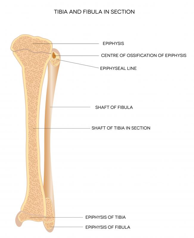 What Are The Signs Of A Bruised Tibia With Pictures