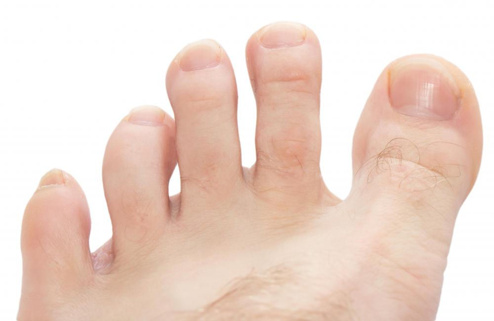 Distal interphalangeal joints are found in the four lesser toes.