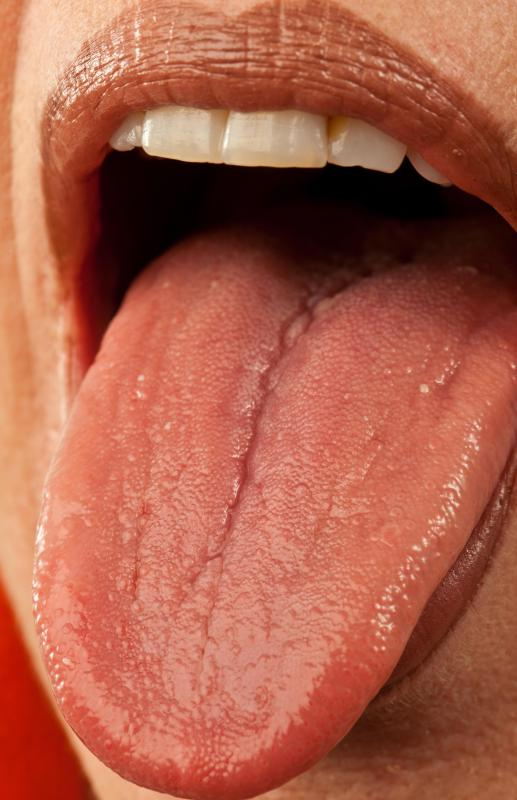 Lie bumps may occur on the tongue.