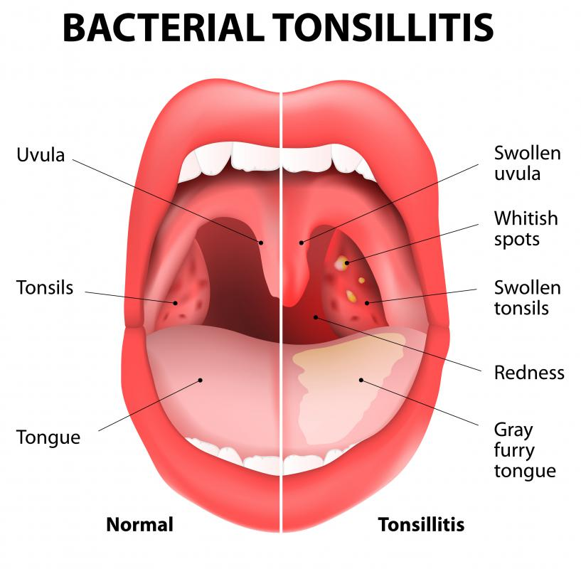 The fauces is the part of the mouth that may be infected with tonsillitis.