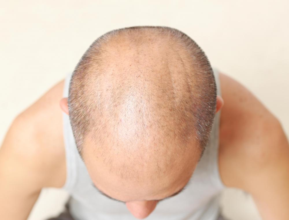 There are some prescription drugs that can help to prevent baldness, and even grow hair.