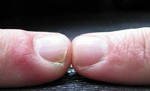 How can I Strengthen my Fingernails? (with pictures)