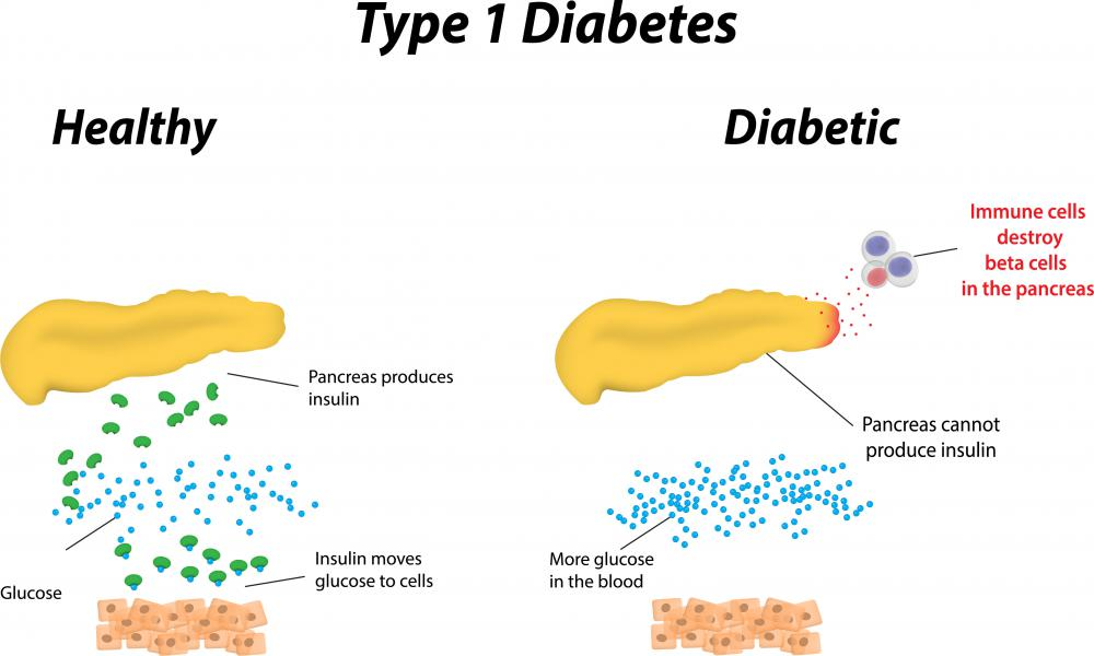 The proinsulin cleavage product called C-peptide is useful in determining whether a person has type 1 diabetes.