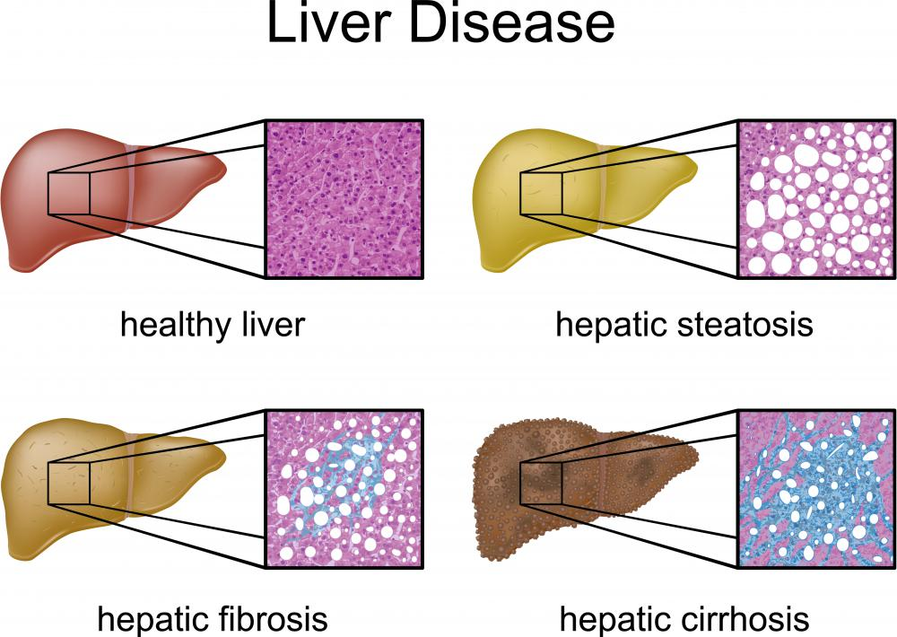 Several types of liver disease, including cirrhosis.