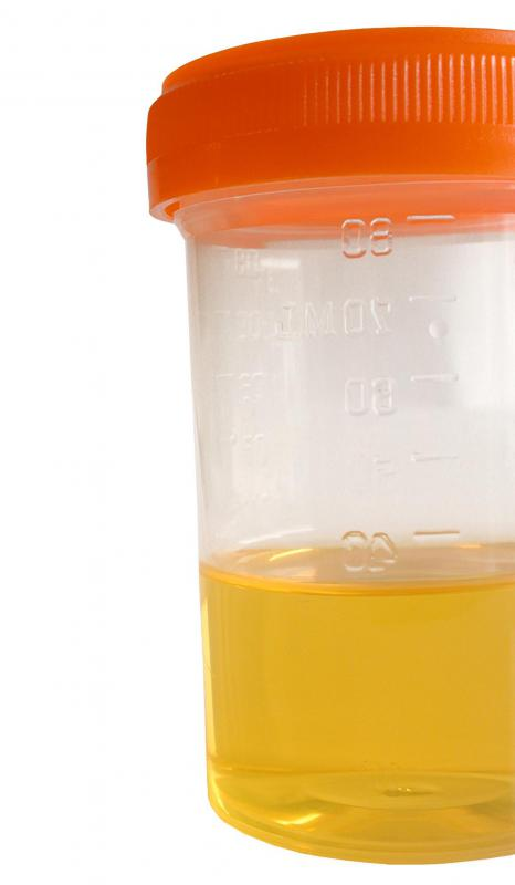 A ctstourethroscope has the ability to collect urine samples.