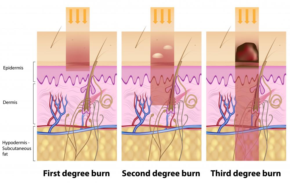 An illustration of the degrees of  damage UV rays can cause to the skin.