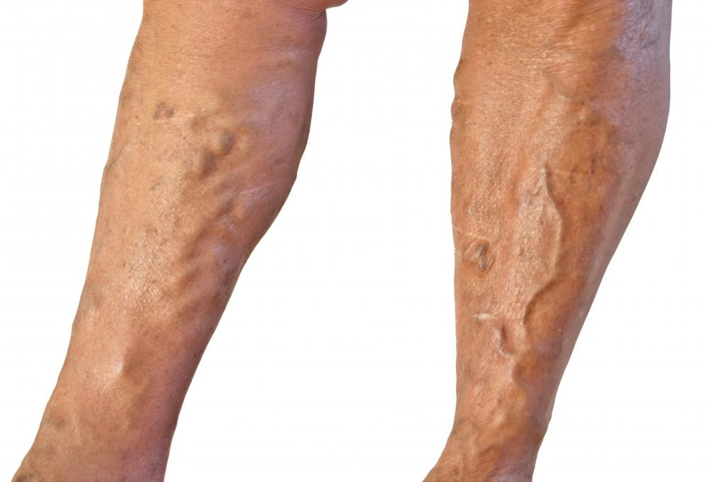 what is a dvt prophylaxis? (with pictures), Human Body