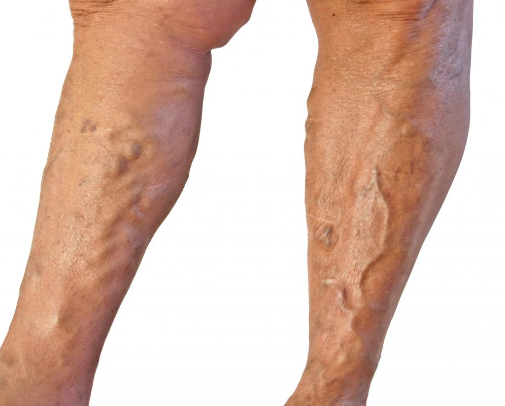Superficial veins run close to the surface of the skin.
