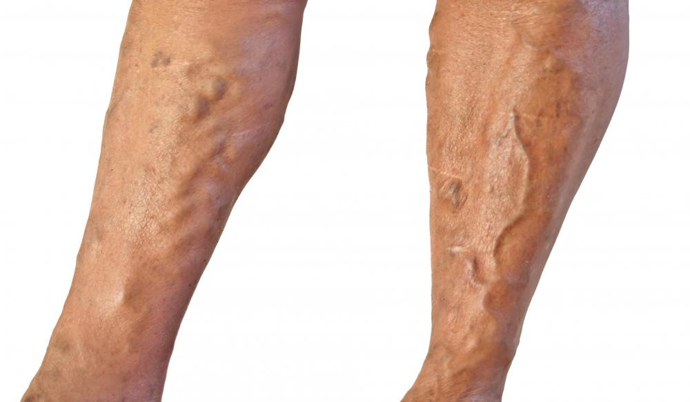 Varicose veins can cause swollen feet.