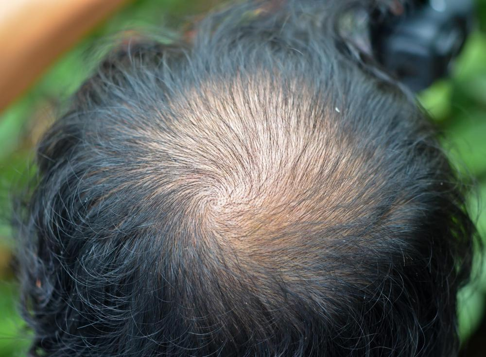For most people, hair loss is a natural symptom of aging.