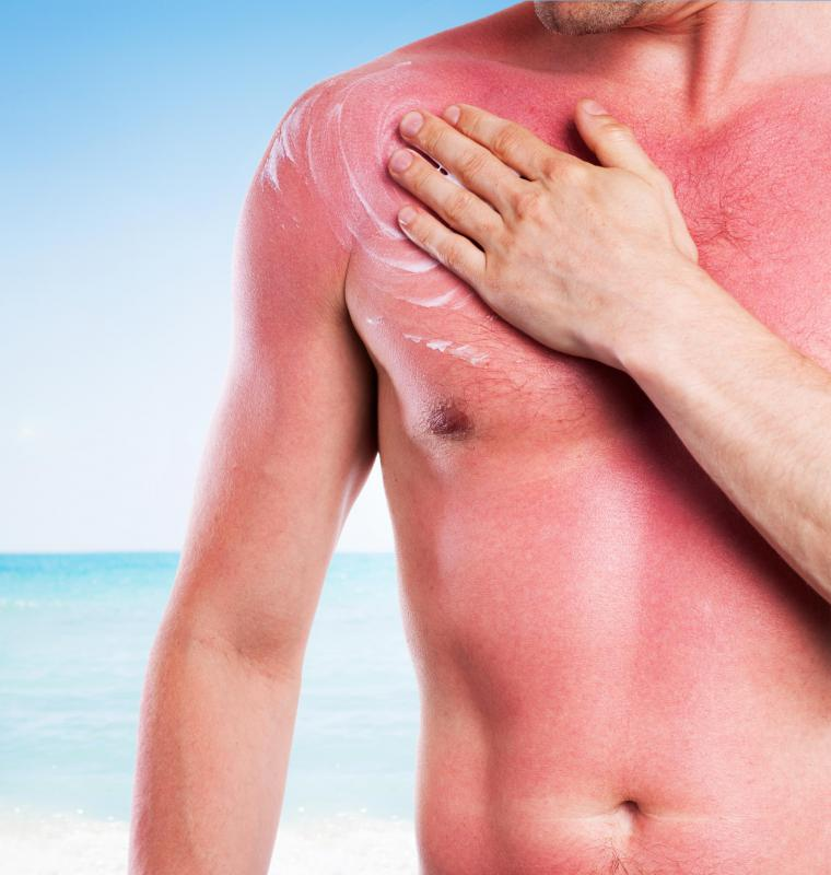 Sunburn is a common first-degree burn.