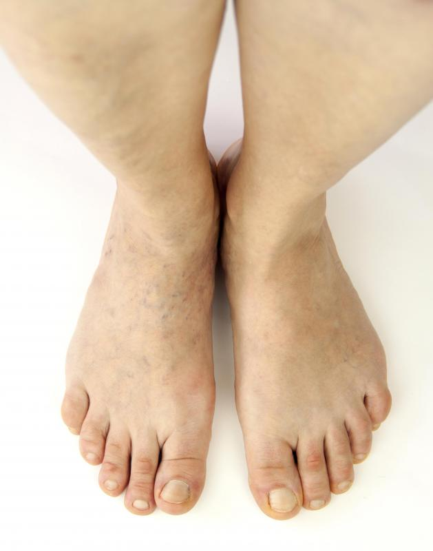 Standing for long periods of time may result in leg edema.