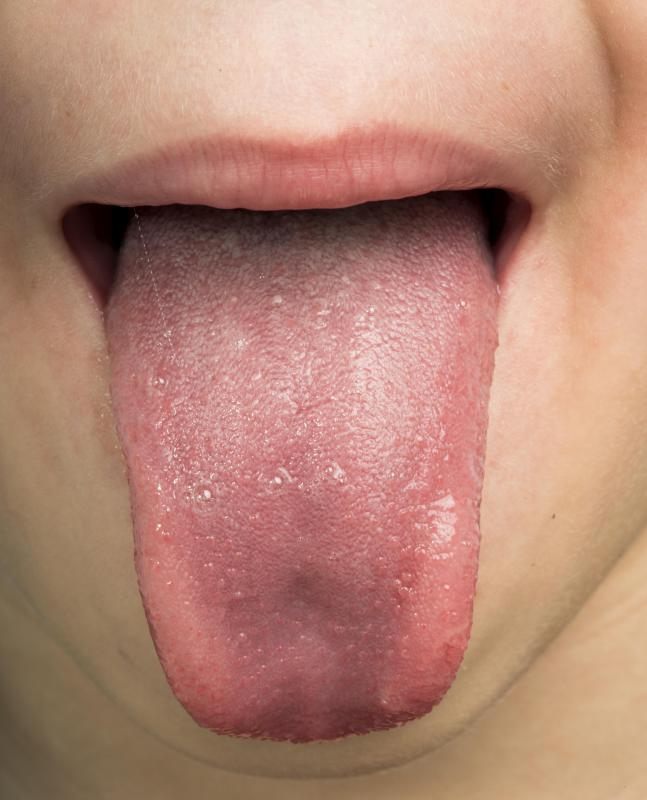 Symptoms of oral HPV can show up on the tongue.