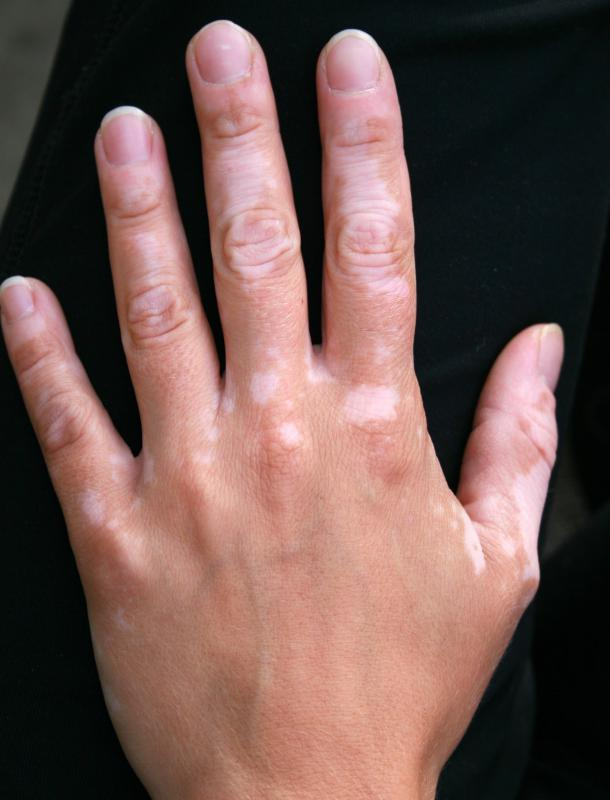 Some people develop white patches of skin because of vitiligo.