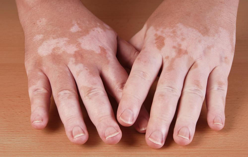 Vitiligo can commonly lead to white eyelashes.