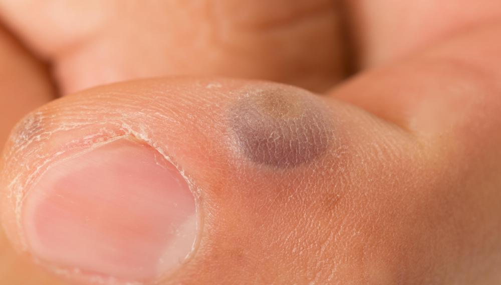 Freezing warts with liquid nitrogen often causes blisters to form where the treatment was performed.