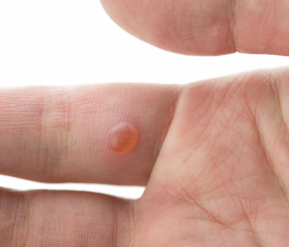 A verruca, otherwise known as a wart, may go away on its own.