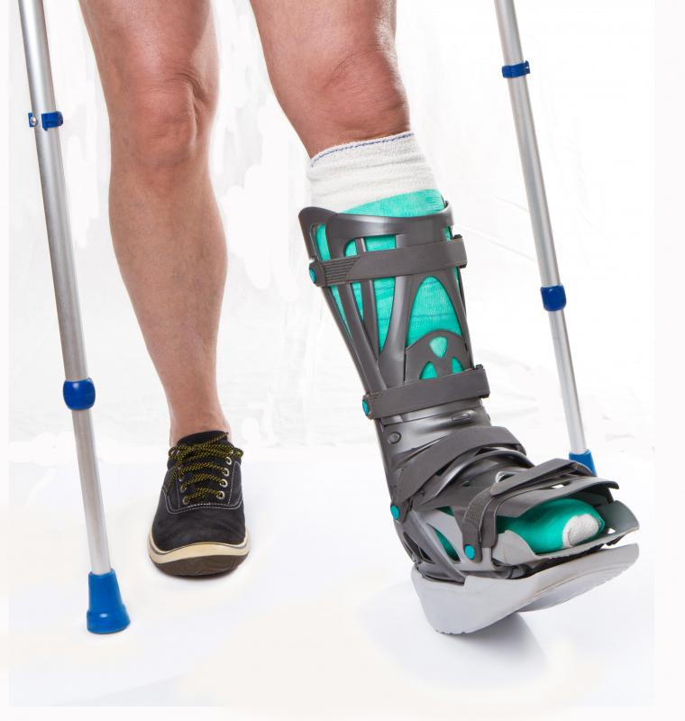 Leg casts and crutches may be needed to stabilize the ankle.