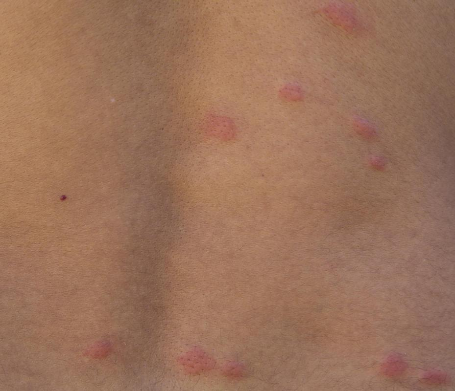 What are Welts? (with pictures) - wiseGEEK