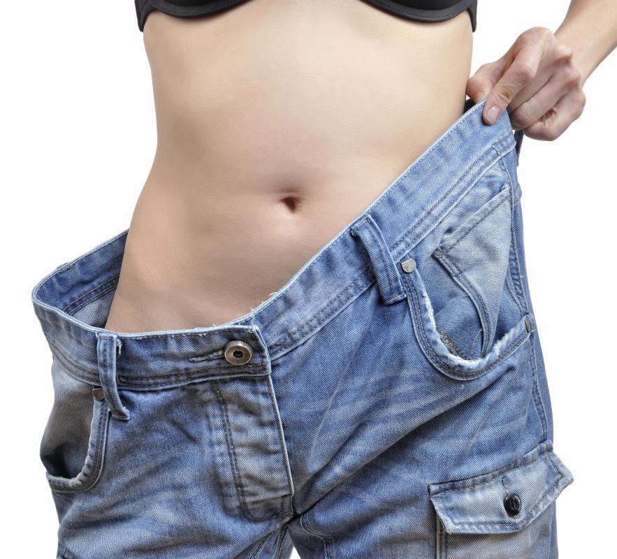 Skin banks would probably not favor donations from a live donor as a result of drastic loss of weight.