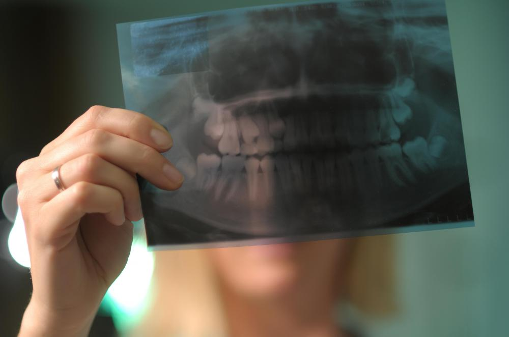 Dental x-rays are typically used to guide dentists when they repair chipped teeth.