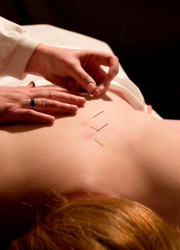 Acupuncture is an ancient Chinese medical practice.