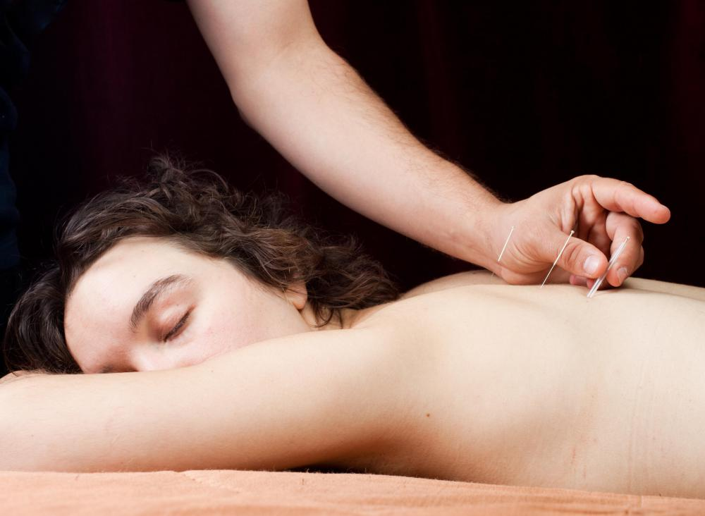 Somatology may refer to alternative forms of medical treatment such as acupuncture.
