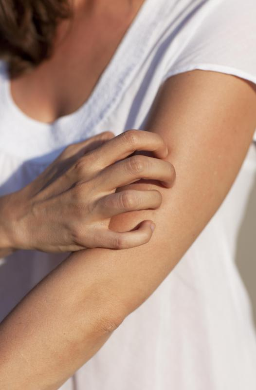 People suffering from eczema may experience itchiness on any area of the body.
