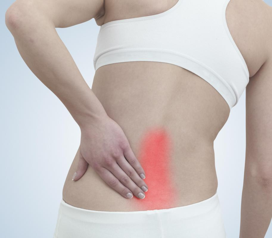 Radiating back pain may be the result of a pinched nerve.
