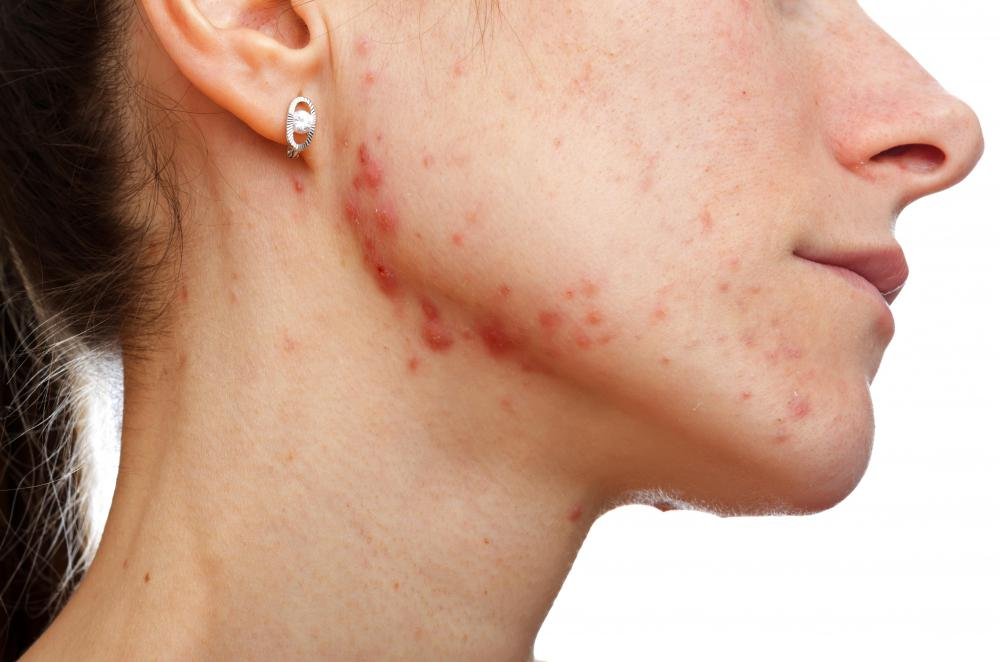 acne adult female