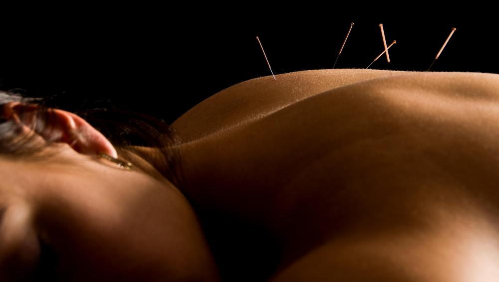 Some chiropractors will advice patients to undergo acupuncture therapy to complement chiropractic medicine.