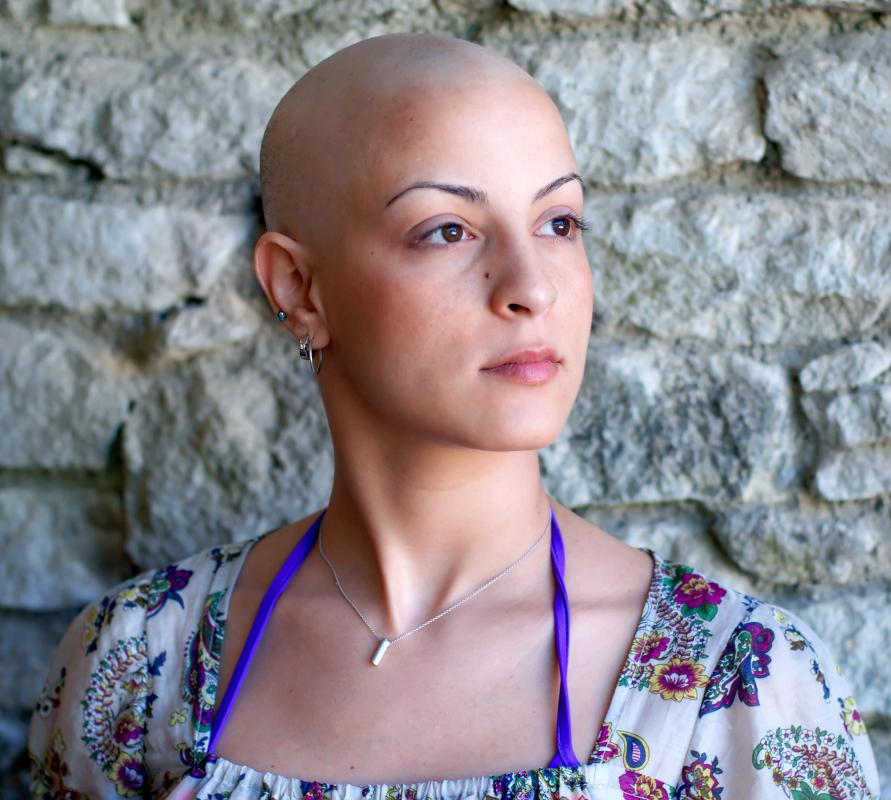 Those undergoing chemotherapy may experience bald spots quickly followed by a complete loss of hair.