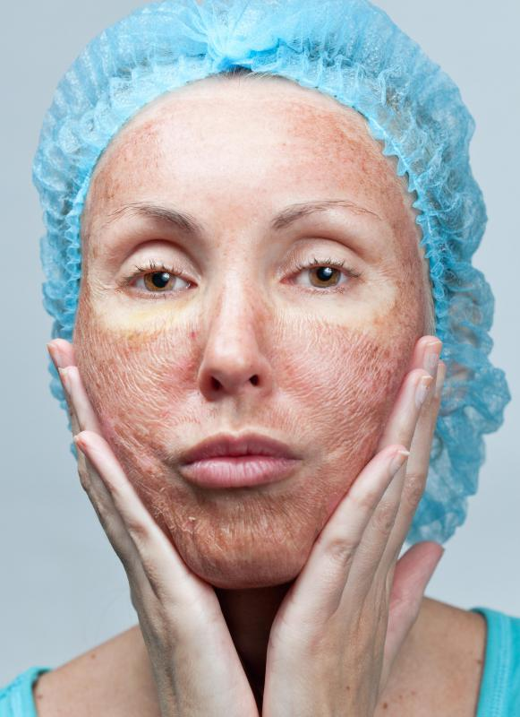 People with dry, inflamed skin may find relief using hydrocortisone cream.