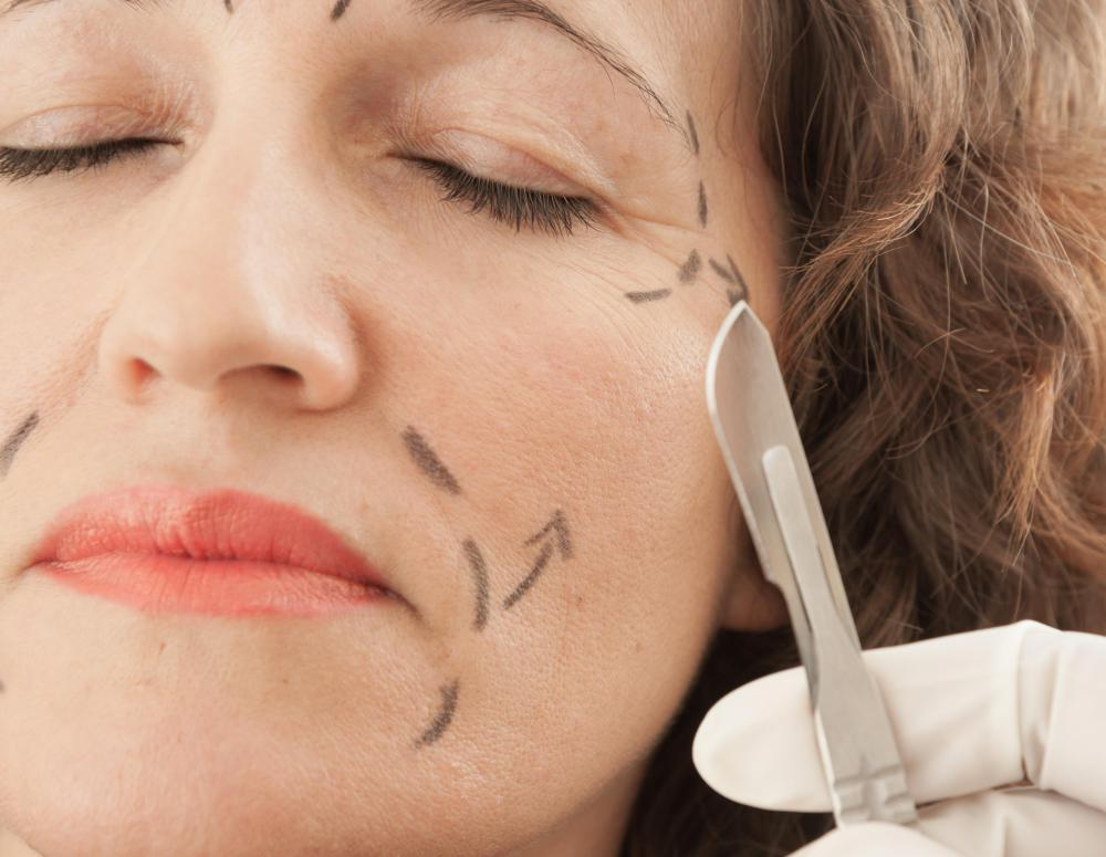 Facial symmetry can be improved through plastic surgery.