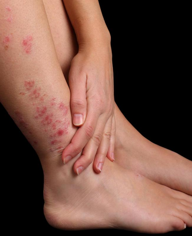 The main symptom of discoid eczema is skin rashes.