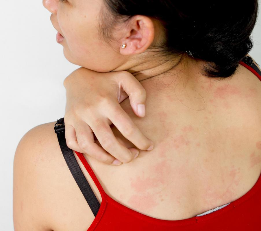 Food poisoning can cause a red rash on the back and chest.
