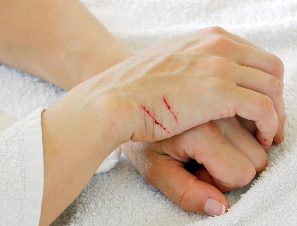 People can become infected with cat scratch fever through a scratch or bite.