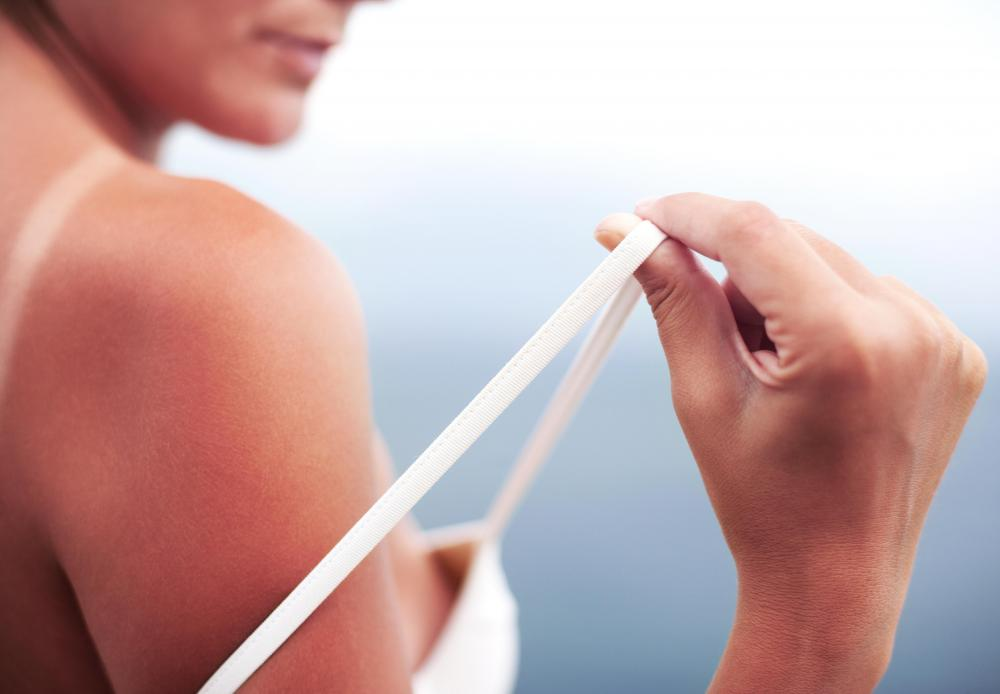 Most people fail to put on enough sunscreen to properly protect their skin.