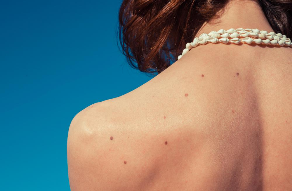Squamous cell carcinoma is most commonly found on areas of the skin that are frequently exposed to sunlight, but these cancers do not spread as quickly as those in other parts of the body.